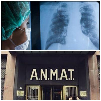 Argentina habilitó un nuevo tratamiento sin quimioterapia para cáncer de pulmón