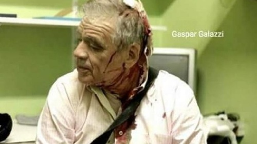 El periodista Julio Bazán retrucó al diputado kirchnerista Leopoldo Moreau por sus polémicos dichos